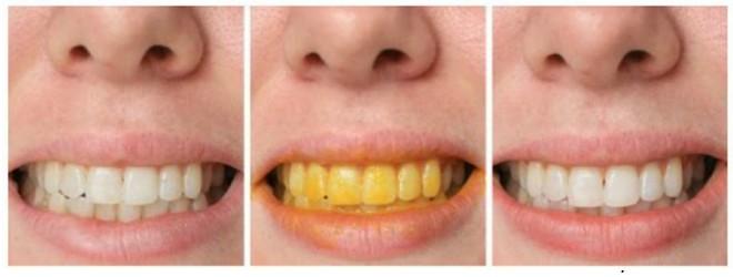 White smile dm cena